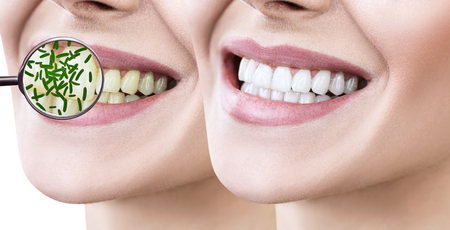 Female smile before and after teeth cleaning. Magnifying glass shows microbes in gums. Healthy teeth concept. Stock Photo