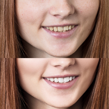 Teeth of young redhead woman before and after whitening.