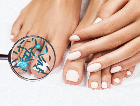Microbes on female legs shows by mygnifying glass. Fungus concept. 3D rendering