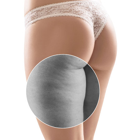 Female buttocks before and after cellulite treatment.