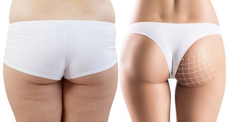 Vrouwelijke billen met pijlen raster voor en na plastische chirurgie.