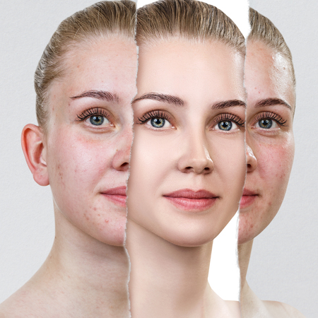 Compare of old photo with acne and new healthy skin.