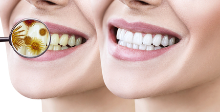 Female smile before and after teeth cleaning from germs.