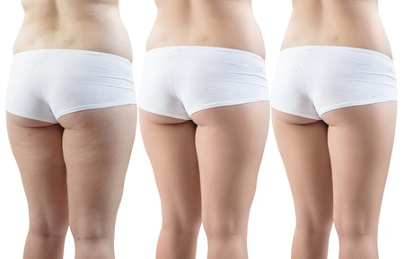 Female buttocks before and after sport and treatment.