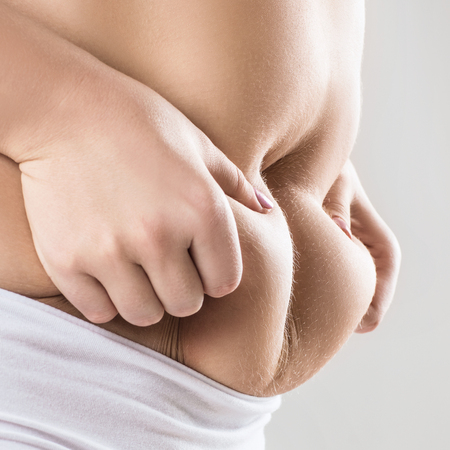 Woman in white underwear holds belly fat. Obesity concept. Over gray background.