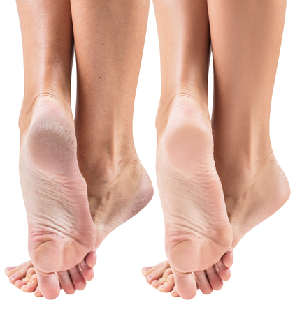 Female feet with dry skin and cracks before and after treatment and spa. Isolated on white background.