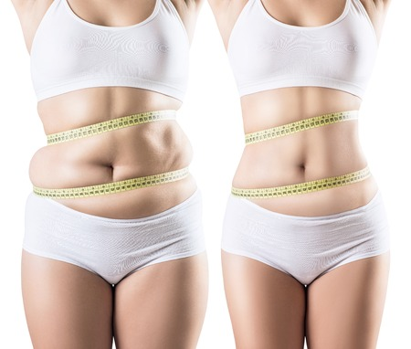 Collage of woman before and after diet and weight loss. Imagens