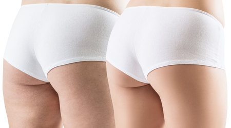 Female buttocks before and after sport and slimming.