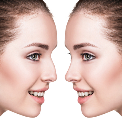 Female nose before and after cosmetic surgery Stock Photo