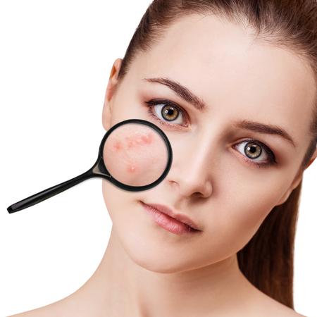 Jong meisje toont acne met vergrootglas.