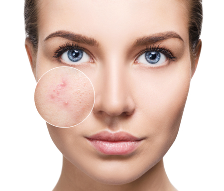 Young woman with acne skin in zoom circle. Stockfoto