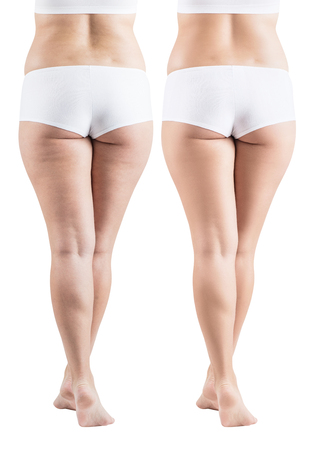 Fatty female buttocks before and after cellulitis