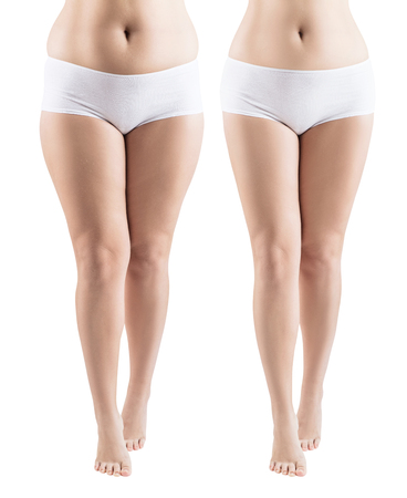Woman legs before and after slimming and treatment skin condition. Isolated on white. Stockfoto