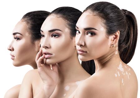 Collage de hermosa mujer con enfermedad de vitiligo.