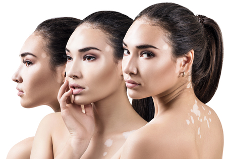 Collage of beautiful woman with vitiligo disease. Standard-Bild