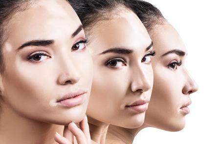 Collage of beautiful woman with vitiligo disease. Stock Photo