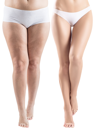 Woman legs before and after slimming. 免版税图像