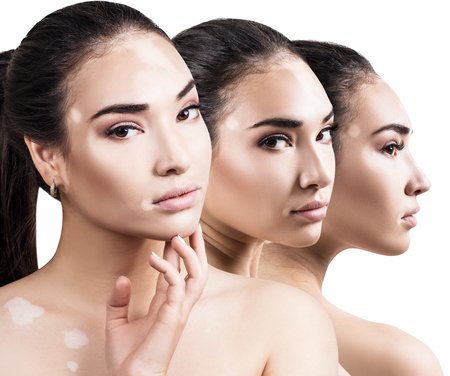 Collage of beautiful woman with vitiligo disease. Foto de archivo