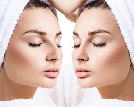 Female nose before and after cosmetic surgery. Stock Photo