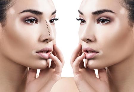 Naso femminile prima e dopo la chirurgia estetica. Archivio Fotografico