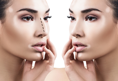 Female nose before and after cosmetic surgery. Stockfoto
