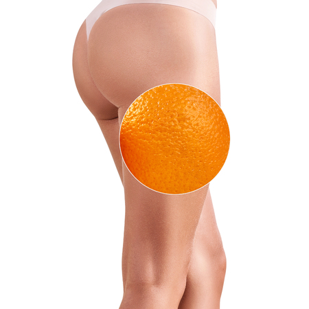 Female buttocks with zoom circle shows orange peel Imagens