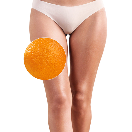Female buttocks with zoom circle shows orange peel 免版税图像