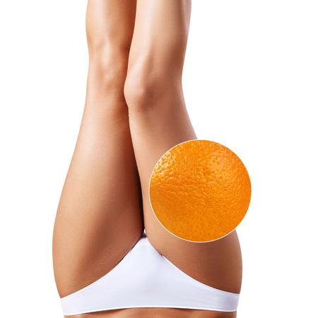 Female buttocks with zoom circle shows orange peel Stock Photo