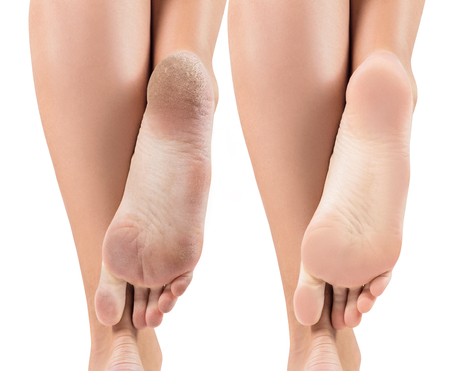 Feet with dry skin before and after treatment. 免版税图像 - 96750602