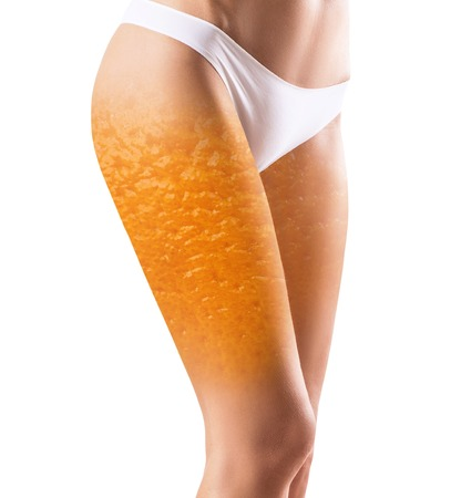 Female buttocks with orange peel texture.