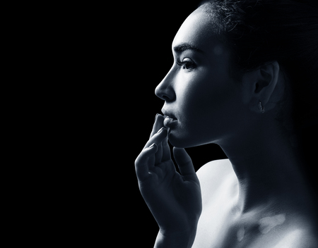 Portrait of beautiful woman with vitiligo.