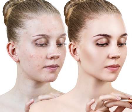 Young woman before and after skin treatment.