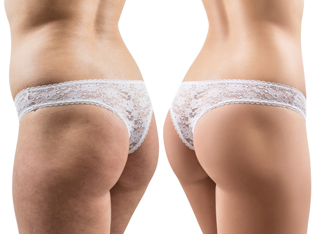 Female buttocks before and after treatment. Imagens - 97762408