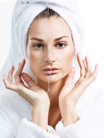Woman with acne before and after spa procedures. Stock Photo