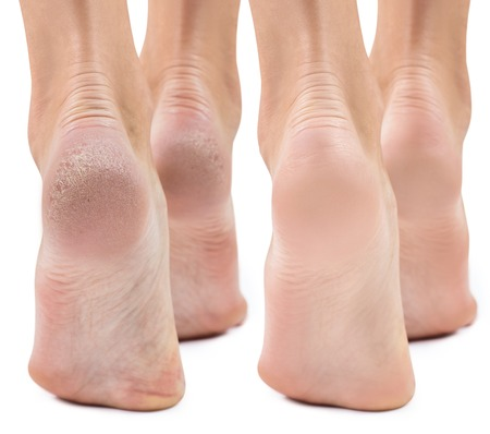 Feet with dry skin before and after treatment.