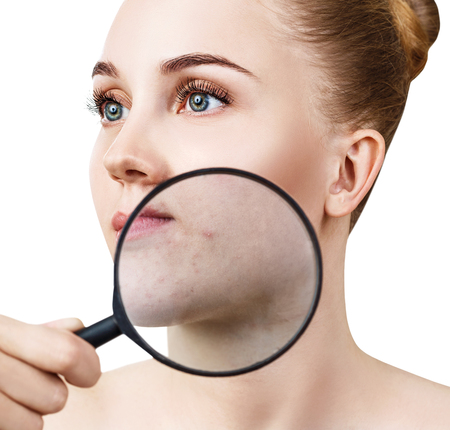 Young woman with magnifying glass shows skin with acne.