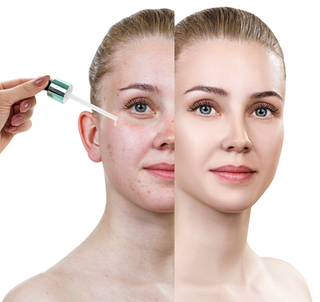 Cosmetics oil applying on face of young woman.