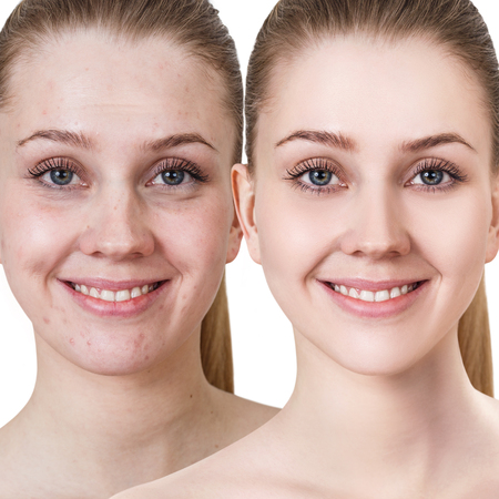 Young woman before and after treatment and make-up. 版權商用圖片