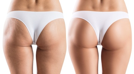 Female buttocks with stretching marks.
