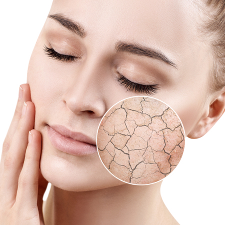 Zoom circle shows dry facial skin before moistening. Stock Photo