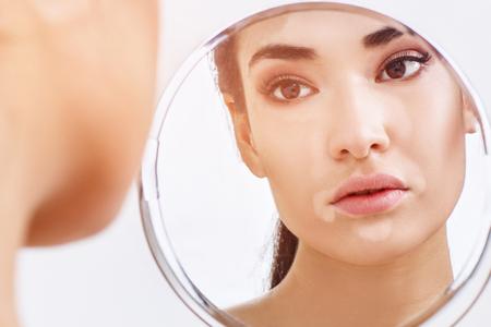 Belle femme avec vitiligo regardant dans le miroir.