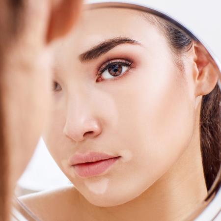 Beautiful woman with vitiligo looking in the mirror.
