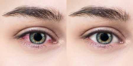 Red eye of woman before and after eyewash treatment. Itchy and irritated eye. Standard-Bild