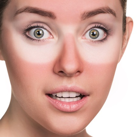 Young surprised woman with sunburned face.