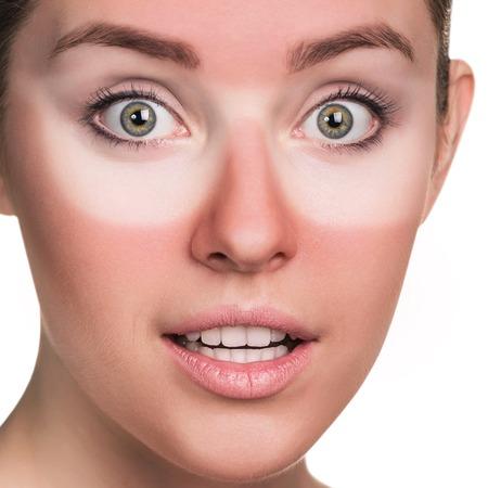 Junge überraschte Frau mit sonnenverbranntem Gesicht. Standard-Bild