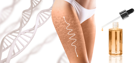 Woman hips with cellulitis and white arrow among DNA stemps.