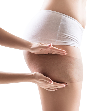 Female buttocks shows skin beforeand after treatment.
