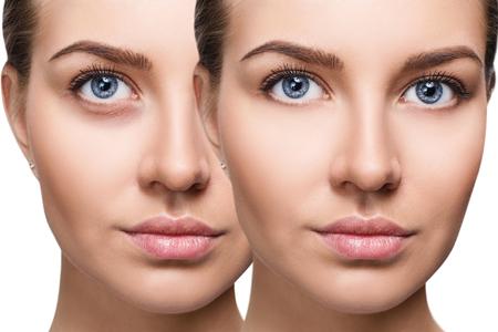 Yeux féminins avec des ecchymoses sous les yeux avant et après un traitement cosmétique.