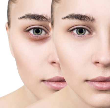 Female eyes with bruises under eyes before and after cosmetic treatment.