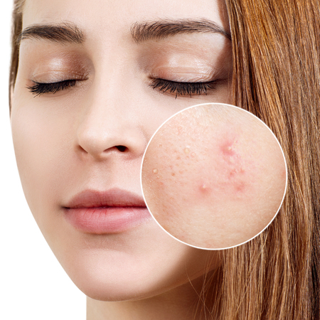 Young woman with acne skin in zoom circle. Reklamní fotografie